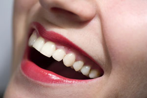 Clareamento Dental Caseiro Clareamento Dental