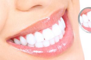 Luzes Lasers E Gels No Clareamento Dental Clareamento Dental